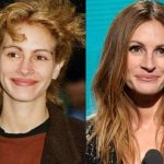 Julia Roberts plastic surgery then and now (33)