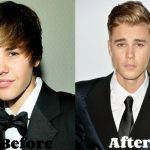 Justin Bieber before and after plastic surgery (18)