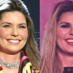 Shania Twain before and after plastic surgery (1)
