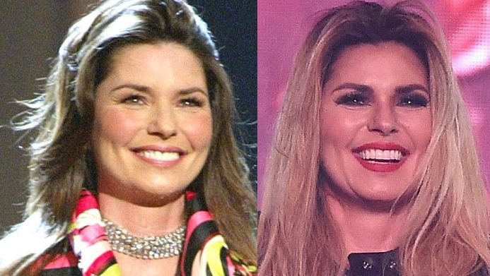 Shania Twain Before And After Plastic Surgery 1