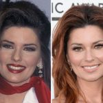 Shania Twain before and after plastic surgery (22)