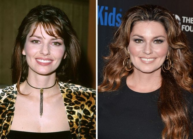 Shania Twain before and after plastic surgery