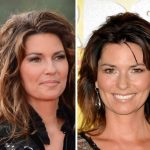Shania Twain before and after plastic surgery (27)