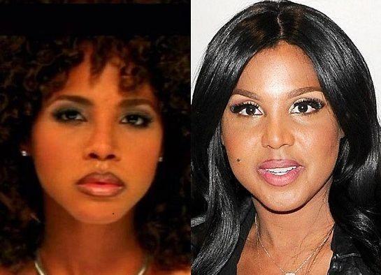 Toni Braxton Before And After Plastic Surgery 31