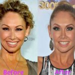 Kym Johnson before and after plastic surgery (18)