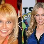 Kym Johnson before and after plastic surgery (19)