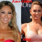 Kym Johnson before and after plastic surgery (20)