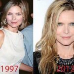 Michelle Pfeiffer before and after plastic surgery (29)
