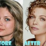 Michelle Pfeiffer before and after plastic surgery (30)