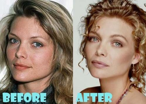 Michelle Pfeiffer Plastic Surgery, Before and After Botox