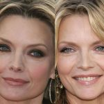 Michelle Pfeiffer before and after plastic surgery (31)