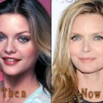 Michelle Pfeiffer before and after plastic surgery (33)