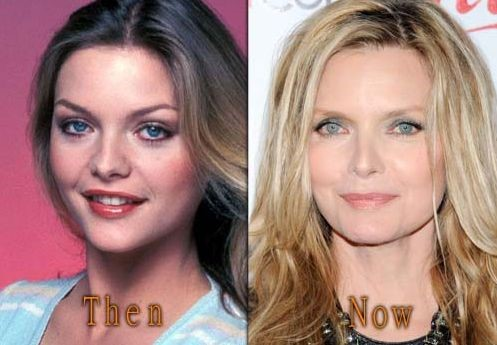Michelle Pfeiffer before and after plastic surgery (9