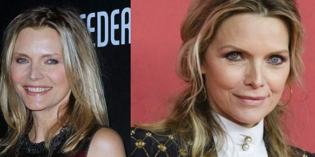 Michelle Pfeiffer before and after plastic surgery (33