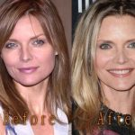 Michelle Pfeiffer before and after plastic surgery (38)