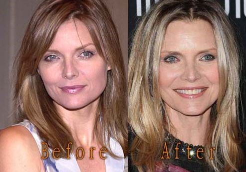 Michelle Pfeiffer Before And After Plastic Surgery 38