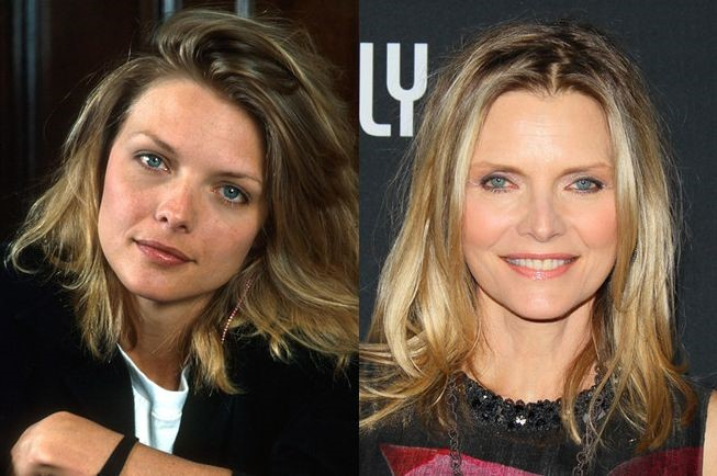 Michelle Pfeiffer before and after plastic surgery