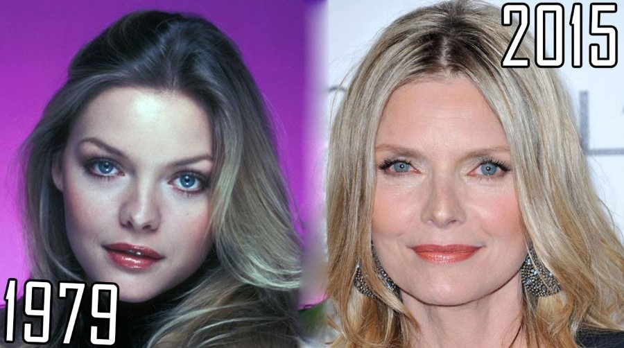 Before and After Plastic Surgery - Michelle Pfeiffer