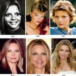 Michelle Pfeiffer plastic surgery from 1975 to 2009