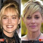 Sharon Stone before and after plastic surgery (2)