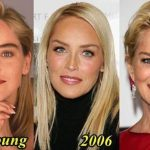 Sharon Stone before and after plastic surgery (28)