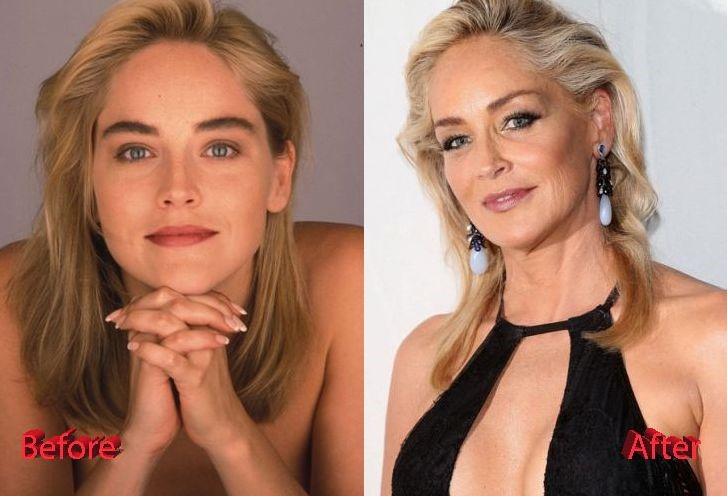 Sharon Stone before and after plastic surgery