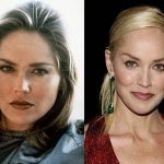 Sharon Stone before and after plastic surgery (32)