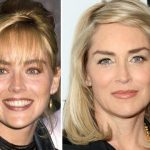 Sharon Stone before and after plastic surgery (34)