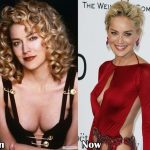 Sharon Stone before and after plastic surgery (39)