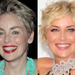 Sharon Stone before and after plastic surgery (42)