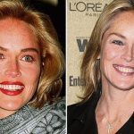 Sharon Stone before and after plastic surgery (43)