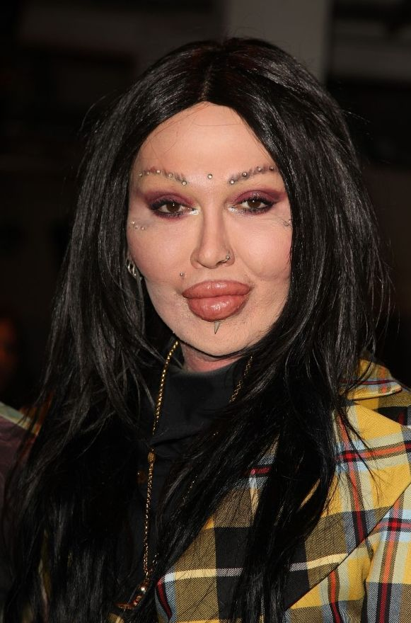 Pete Burns after plastic surgery