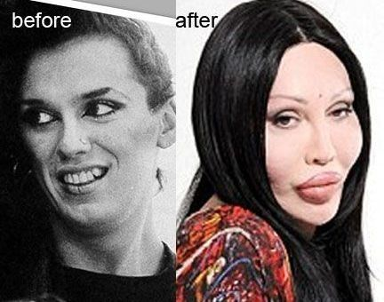 Pete Burns before and after plastic surgery 23
