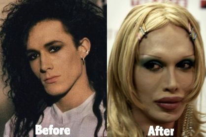 Pete Burns Before And After Plastic Surgery 44 Celebrity