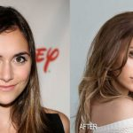 Alyson Stoner before and after plastic surgery