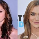 Alyson Stoner before and after plastic surgery 3