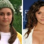 Alyson Stoner before and after plastic surgery 9