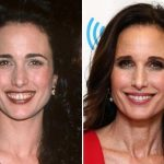 Andie Macdowell before and after plastic surgery 21