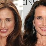 Andie Macdowell before and after plastic surgery 28