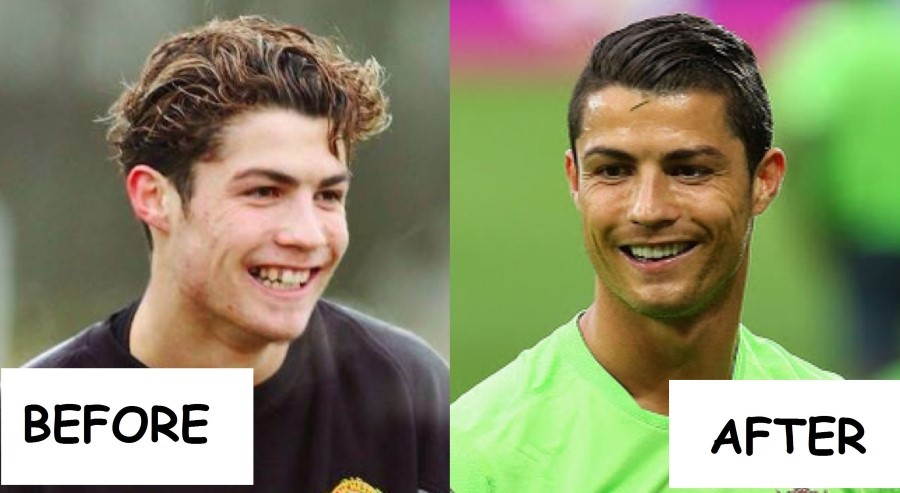 [Image: Cristiano-Ronaldo-before-and-after-plast...gery-1.jpg]