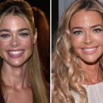 Denise Richards before and after plastic surgery 40