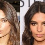 Emily Ratajkowski before and after plastic surgery 12