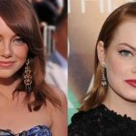 Emma Stone before and after plastic surgery 2