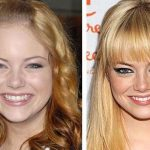 Emma Stone before and after plastic surgery 26