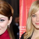 Emma Stone before and after plastic surgery 35