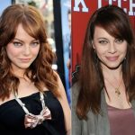 Emma Stone before and after plastic surgery 5
