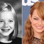 Emma Stone before and after plastic surgery 6