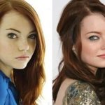 Emma Stone before and after plastic surgery 8
