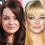 Emma Stone before and after plastic surgery 9