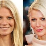 Gwyneth Paltrow before and after plastic surgery 1